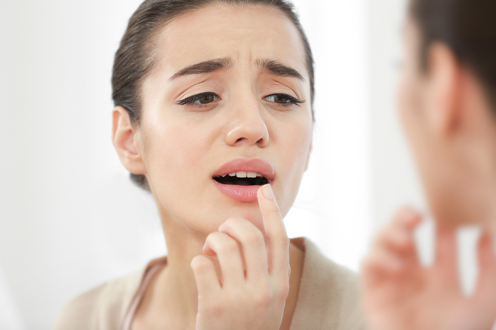 Mouth Sores: Why You Should Be Concerned 3