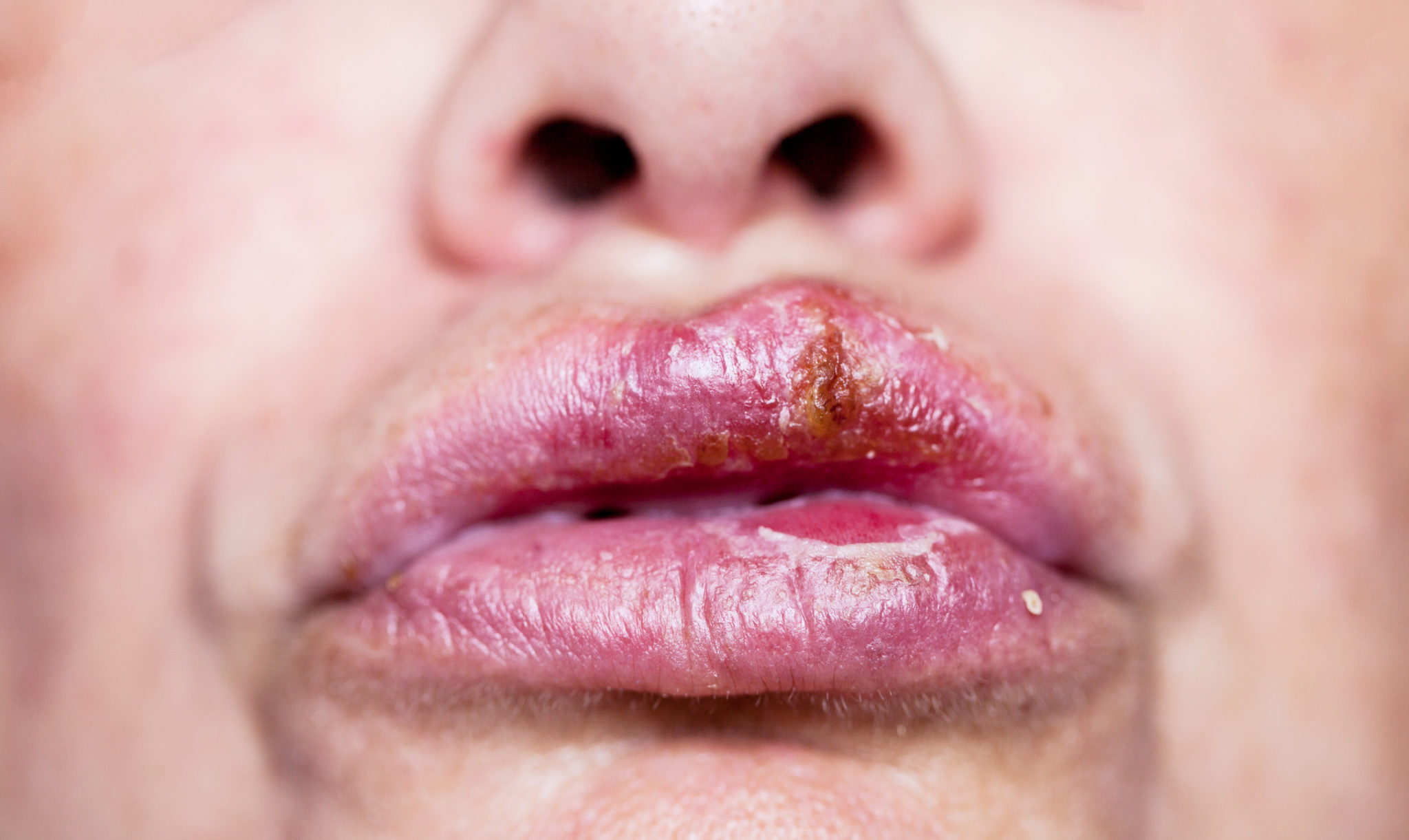 Mouth Sores: Why You Should Be Concerned 7