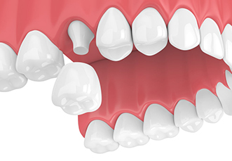 Dental crown procedure, cost and claims 1