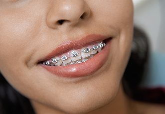 Braces And Orthodontic Treatment